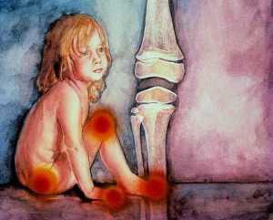 artritis reumatoide infantil